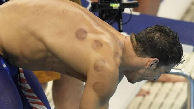 face cupping atletas