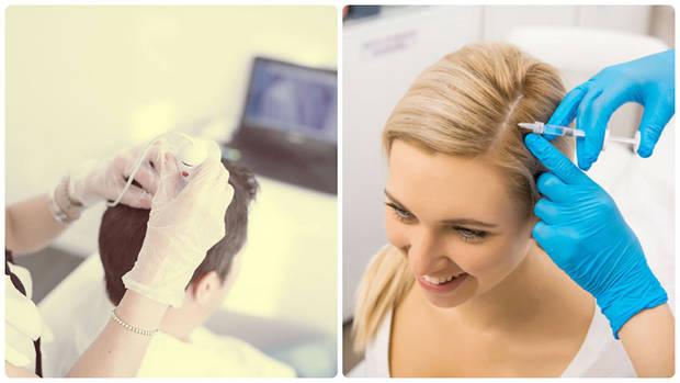 tratamientos-caida-pelo-alopecia