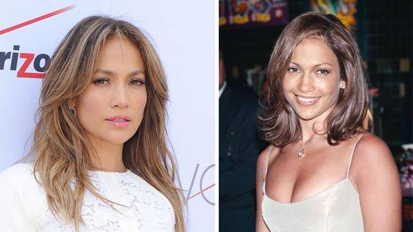celebrities-post-bisturi-radical jennifer-lopez